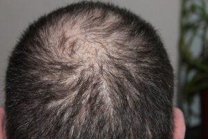טיפול prp לשיער